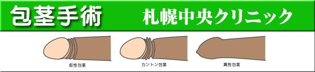 包茎手術札幌中央クリニック